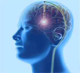 Deep Brain Stimulation   Dr. Masel