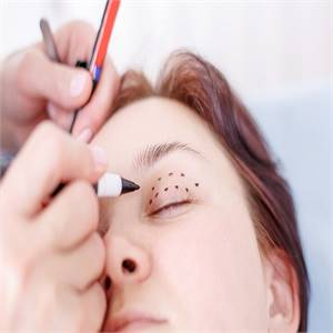 Treatment of Drooping Eyelids (Blepharoplasty)