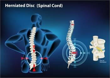 Spinal Fusion Surgery   Dr. Masel