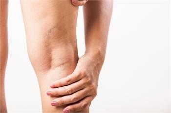 Varicose Veins Symptoms | Vascular Surgery Now