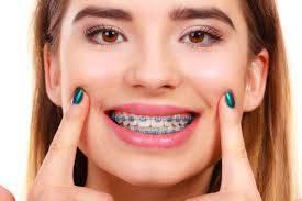 Best Orthodontist in Miami
