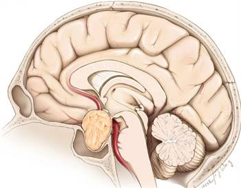 Pituitary Tumor Excision   Dr. Masel