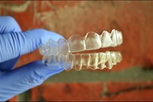 Teeth Whitening and Teeth Bleaching